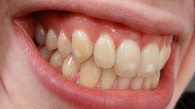 Dişlerin sararmasında en büyük etkenler